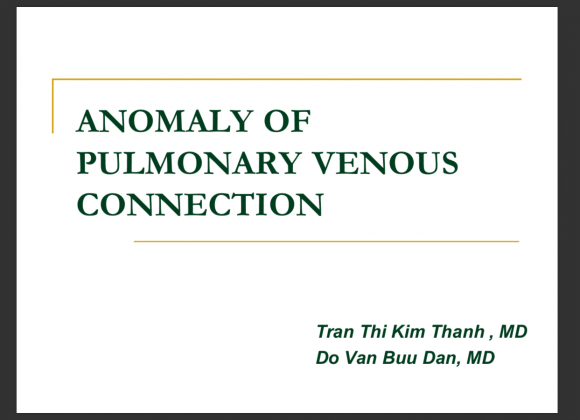 Anomaly of pulmonary venous connection