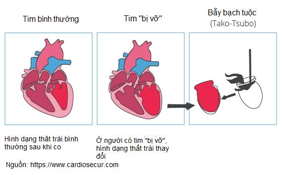 Bệnh cơ tim Takosubo