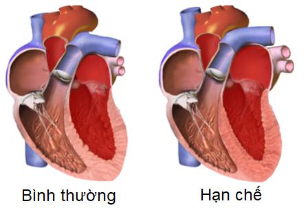 Bệnh cơ tim hạn chế