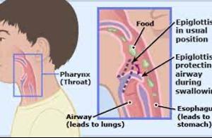 Dị Vật Đường Thở